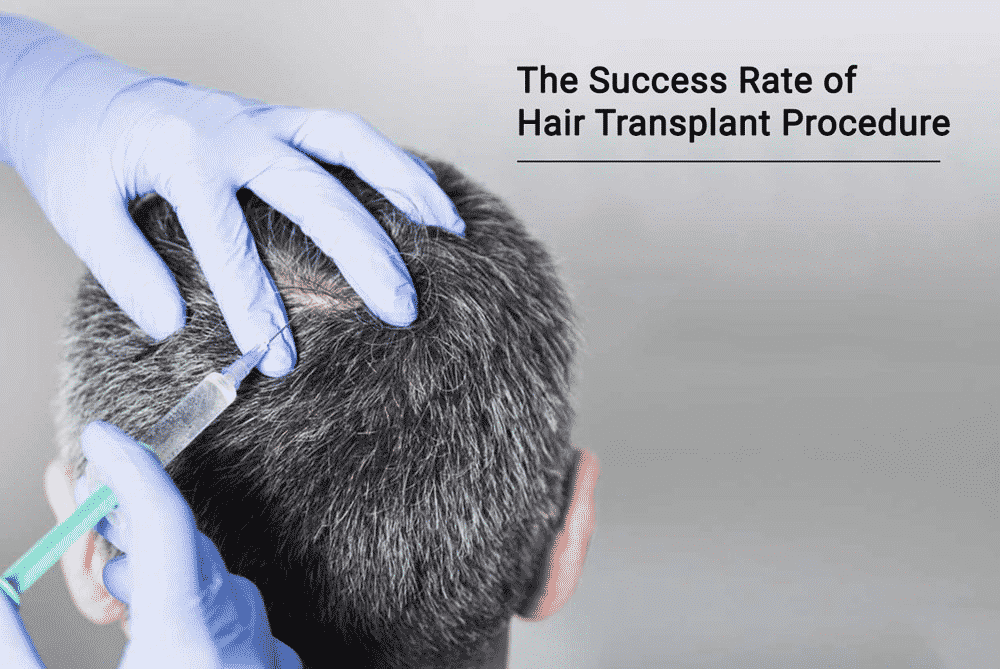 10 Things to Consider Before Having a Hair Transplant5