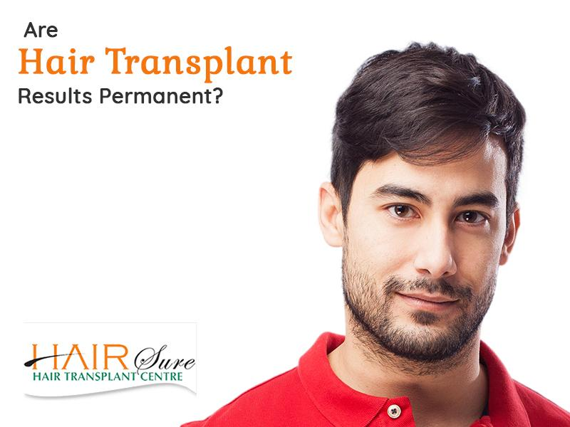 Are hair transplant results permanent