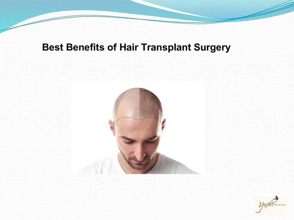 Are hair transplant results permanent3