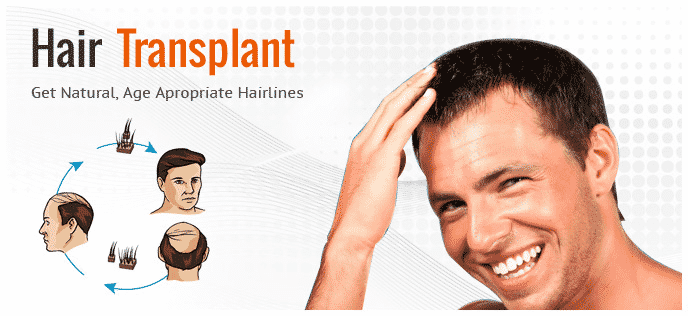 Are hair transplant results permanent4