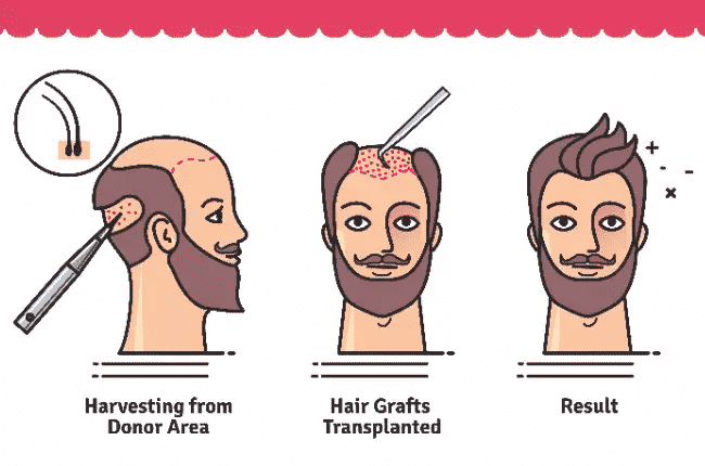 A Hair transplant can give you permanent and natural looking results by Hair sure, One of the best Hair Specialty clinic in Hyderabad
