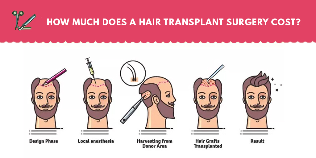 Hair Transplant Surgery Cost Learn How Much Does It Costs1