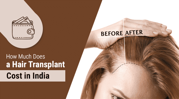 Hair Transplant Surgery Cost Learn How Much Does It Costs2