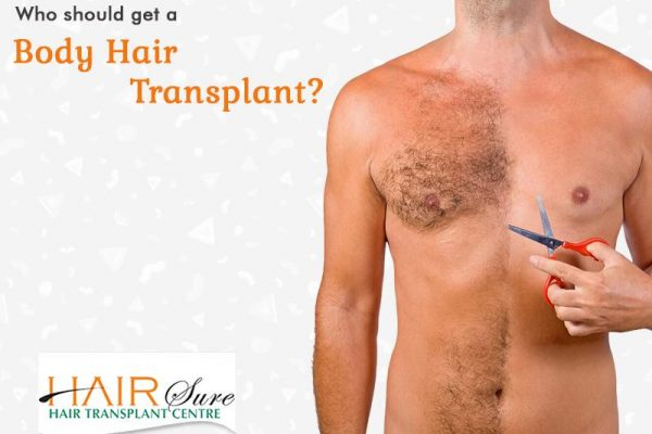Who should get a Body Hair Transplant?