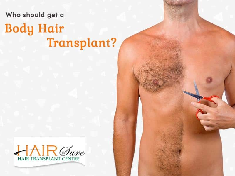 Who should get a body hair transplant