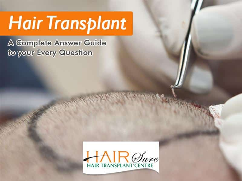 Hair Transplant: A Complete Answer Guide to your Every Question