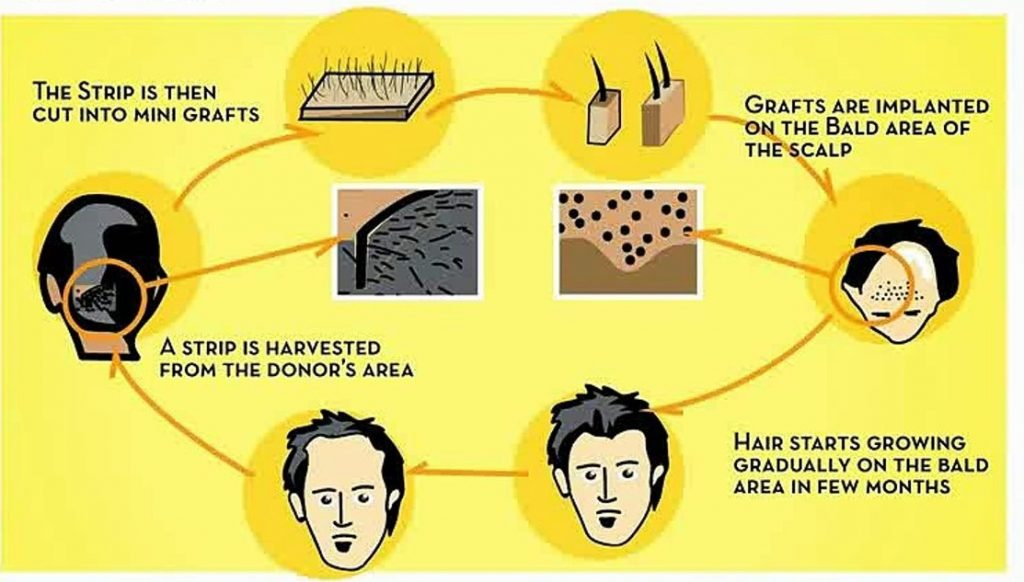 Top 5 Benefits of Hair Transplant Surgery1