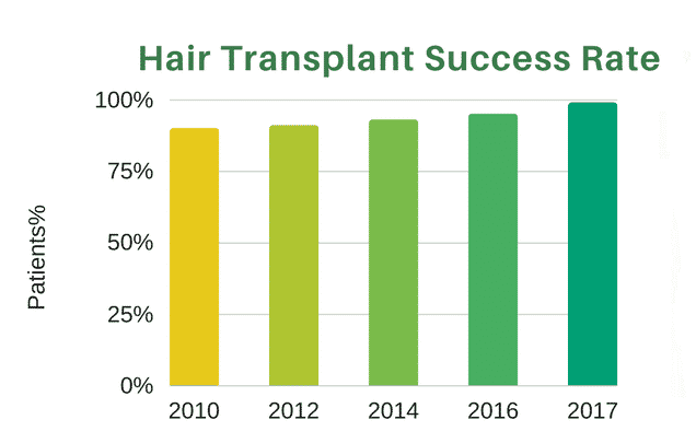 Hair Transplant Success Rate At Hairsure