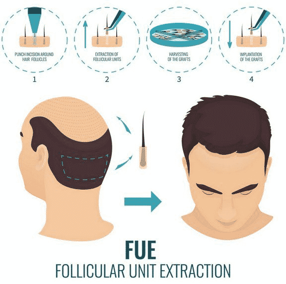 FUE Hair Transplant treatment in Hyderabad, Hair color specialist near me