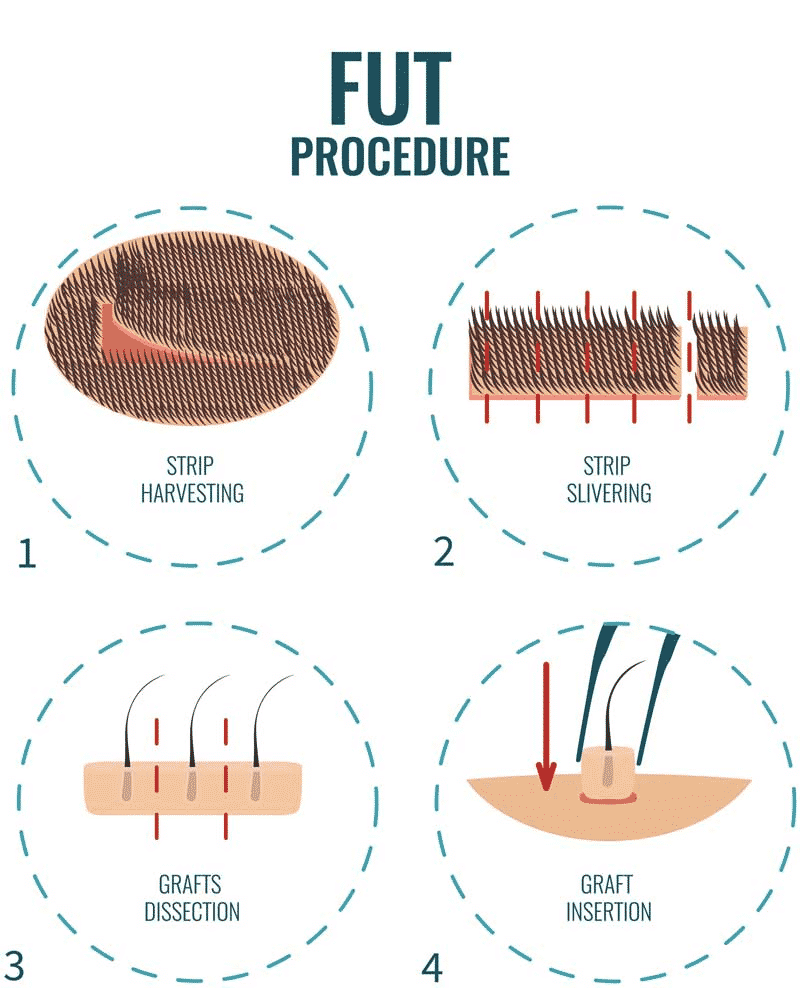 FUT Hair Transplant by Dr. Sridhar Reddy, one of the best Hair restoration specialist in Hyderabad