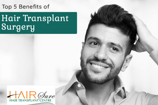 Top 5 Benefits of Hair Transplant Surgery