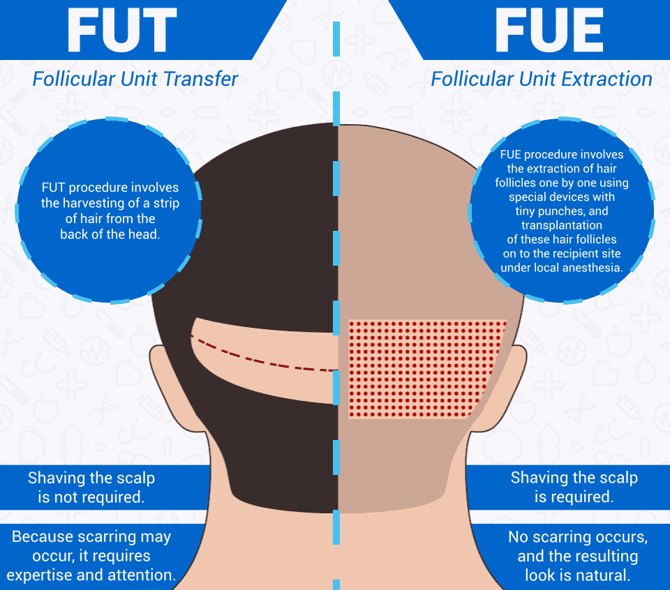 Benefits of FUE and FUT after Hair transplant by Hair sure clinic, one of the best Hair loss treatment clinic in Hyderabad