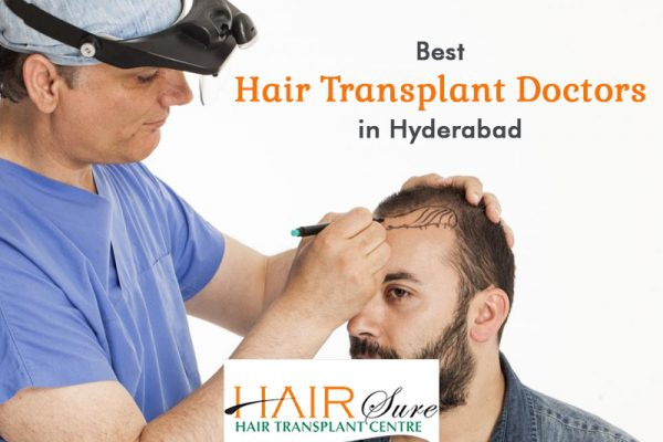 Best Hair Transplant Doctors in Hyderabad