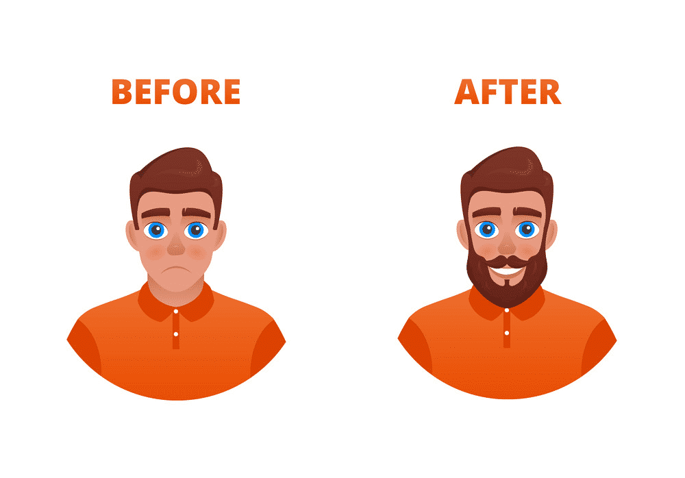 Results before after Hair transplantation by Hair sure clinic, one of the best Hair hospital in Hyderabad