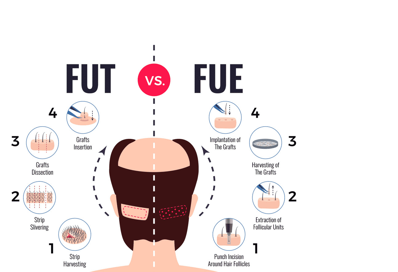 FUT and FUE Hair transplant in Hyderabad, best Hair specialist near me