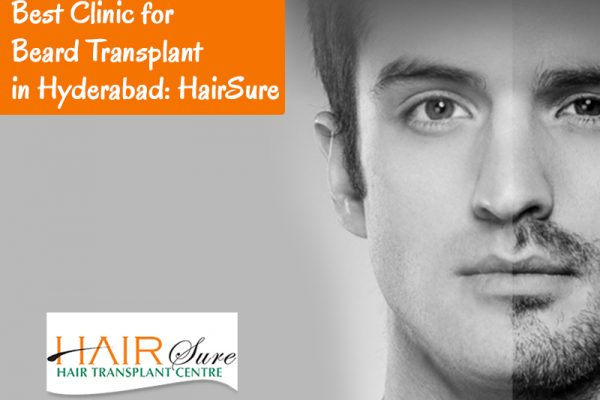 Best Clinic for Beard Transplant in Hyderabad: HairSure