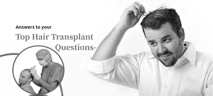 Hair Transplant Treatment Questions and Answers by Dr. RAVI CHANDER RAO, one of the best Hair specialist in Hyderabad