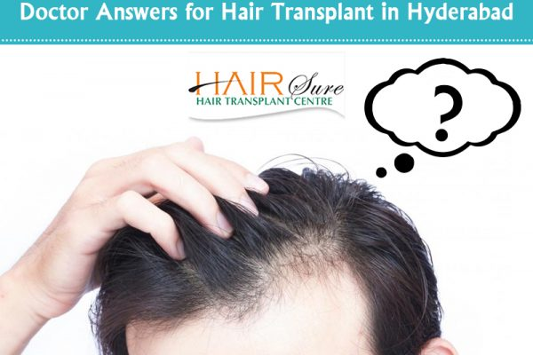 Doctor Answers for Hair Transplant in Hyderabad
