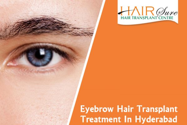 Eyebrow Hair Transplant Treatment In Hyderabad