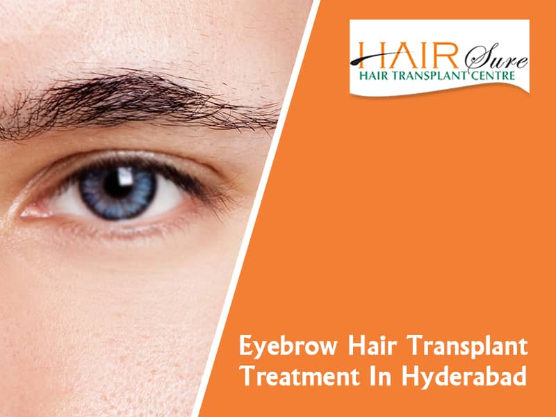 Best Eyebrow Hair transplant clinic in Hyderabad, Hair skin specialist near me