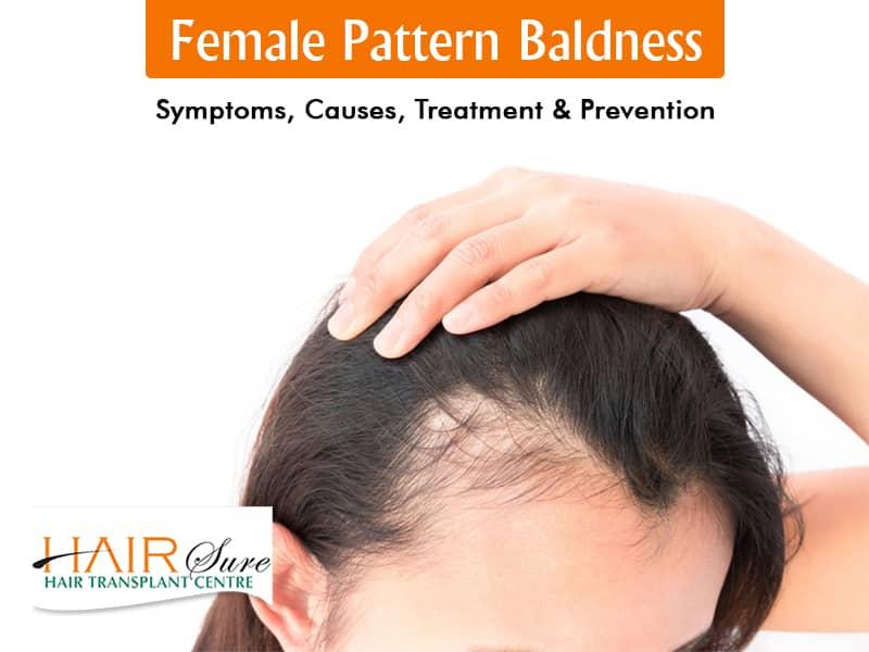 Female Pattern Baldness – Symptoms, Causes, Treatment & Prevention