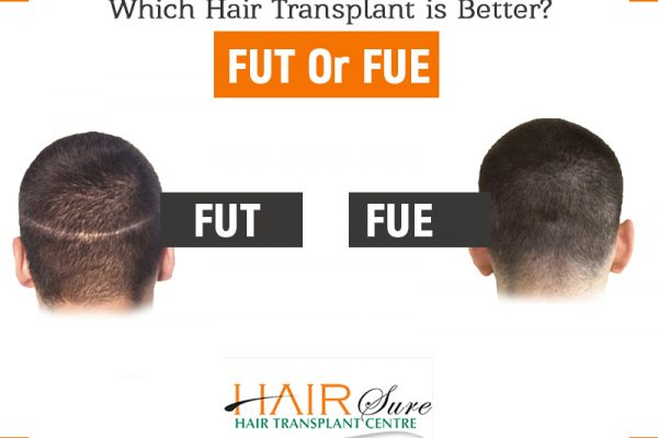 Which Hair Transplant is Better – FUT Or FUE?
