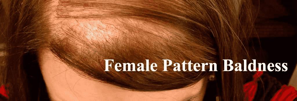 Female pattern baldness treatment in Hyderabad, dermatologist Hair specialist near me