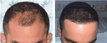 A Hair Transplant Can Give You Permanent, Solution?