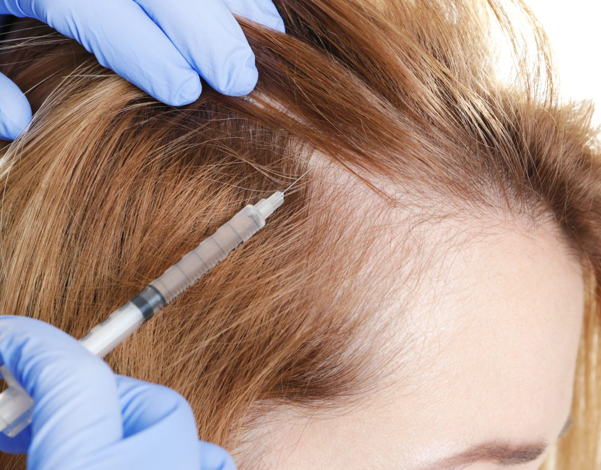 Best Laser Therapy for Hair loss in Hyderabad, dermatologist for Hair near me