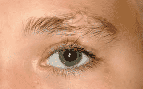 How To Identify And Prevent Eyebrow Hair Loss Hair Sure