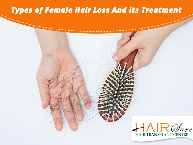 Types of Female Hair Loss And Its Treatment