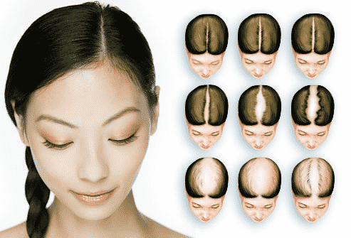 What Is The Treatment For A Bald Female Pattern In India?