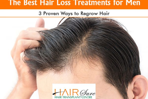 The Best Hair Loss Treatments for Men: 3 Proven Ways to Regrow Hair