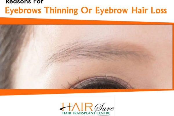 Reasons For Eyebrows Thinning Or Eyebrow Hair Loss