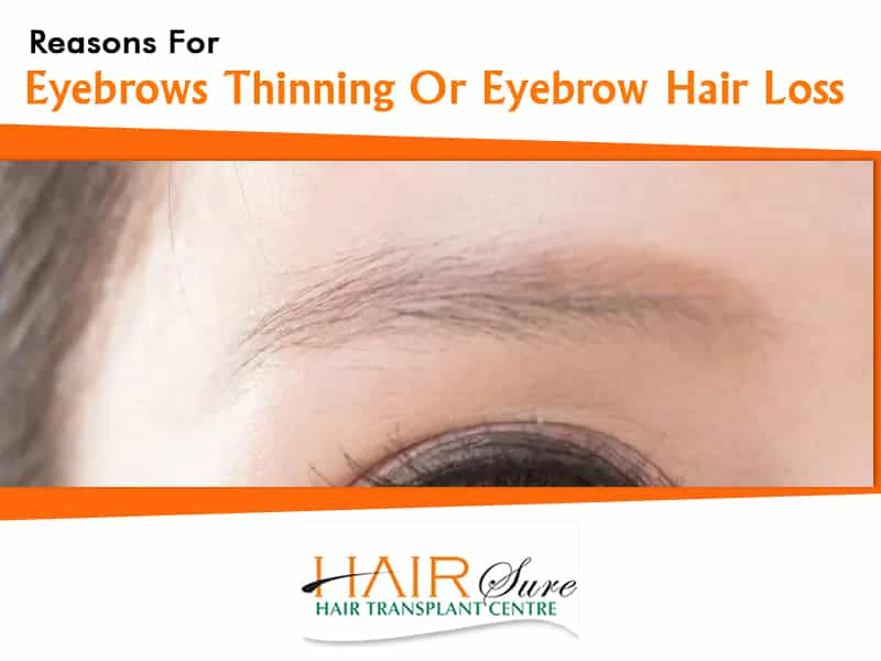 Eyebrows thinning and eyebrow Hair loss treatment in Hyderabad, Hair loss clinic near me