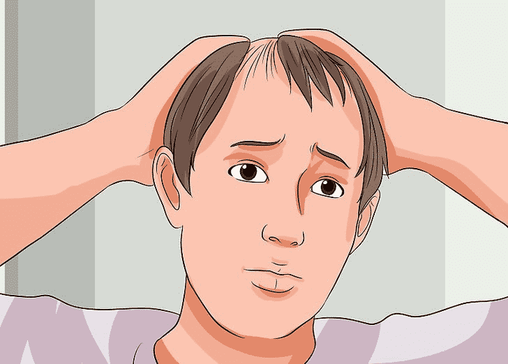 Why is my Hair falling out? causes of Hair loss and its treatment in Hyderabad, Hair specialist near me