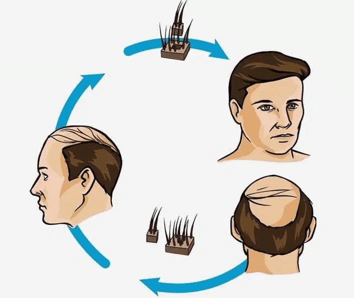 new Hair transplant procedure treatment in Hyderabad, Hair doctor near me