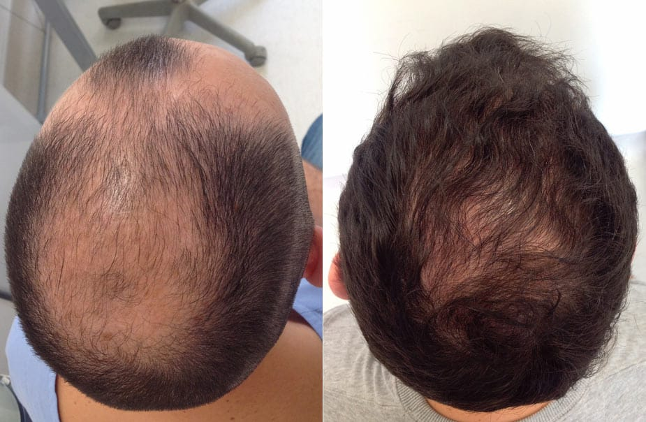 Best Hair transplantation in Hyderabad, Hair color specialist near me
