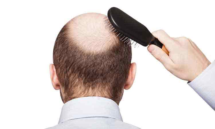 Hair Loss and Male Pattern Baldness treatment in Hyderabad, Hair loss doctor near me
