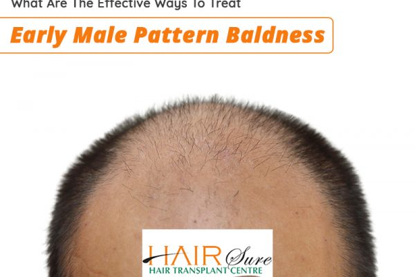 What Are The Effective Ways To Treat Early Male Pattern Baldness