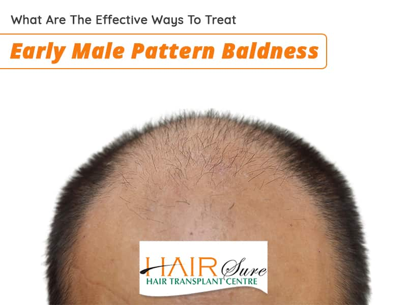 Best treatment for early Male pattern baldness in Hyderabad, Hair specialist doctor near me
