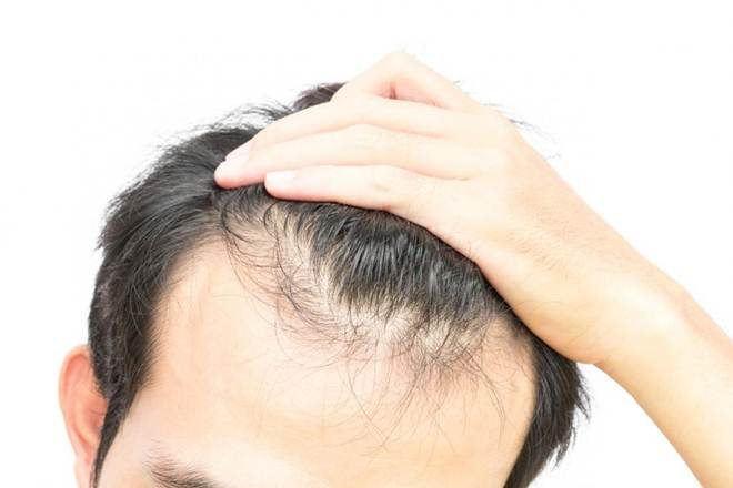 Best treatment for Hair fall in Hyderabad, doctor for Hair fall near me