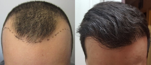 Best Hair transplant treatment in Hyderabad, best Trychologist near me