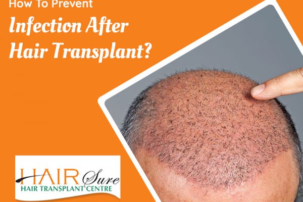 How To Prevent Infection After Hair Transplant?