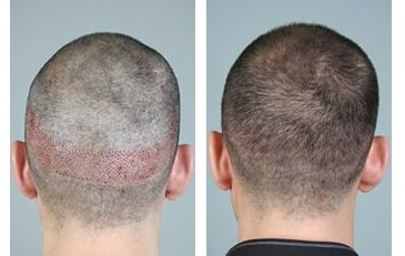 Hair transplant donor area before and after at Hair sure clinic, One of the best Hair specialty centre in Hyderabad