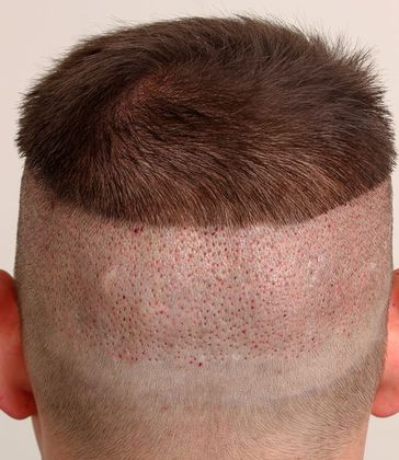 Hair Re-Growth in Donor Area after Hair Transplant Surgery in Hyderabad, Hair clinic near me