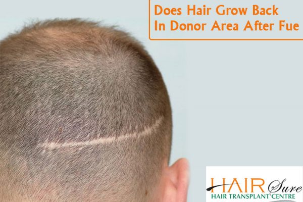 does Hair grow back in donor area after FUE Hair transplant, Hair fall control doctor near me