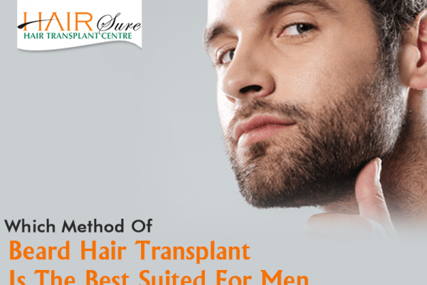 beard transplantation in Hyderabad,alopecia areata specialist near me