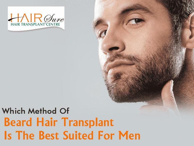 beard transplantation in Hyderabad,alopecia areata specialist near me