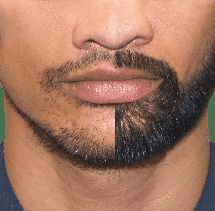 Beard Hair Transplant in Hyderabad, Best trychologist near me